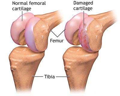Artroza șoldului – ce este, diagnostic și tratament – suceava360.ro