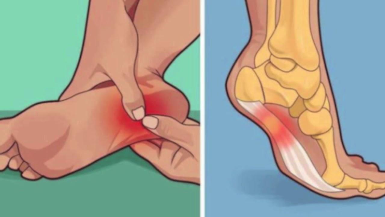 durerile din talpa piciorului